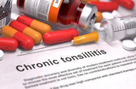 stock photo of mucosa  - Chronic Tonsillitis  - JPG