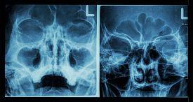 image of sinuses  - Film X - JPG