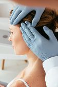 Cropped View Of Dermatologist In Latex Gloves Examining Hair Of Patient In Clinic poster