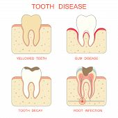 picture of tooth  - tooth decay disease - JPG