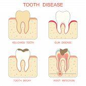 stock photo of teeth  - tooth decay disease - JPG
