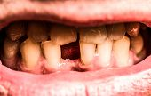 Man Without One Front Tooth. No Teeth. Yellow Teeth. Bad Dental Health, No Teeth, No Fluoride, Tooth poster
