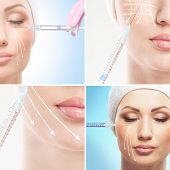 Young woman getting face lifting procedure (collection of some elements)