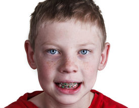 stock photo of overbite  - A Happy young boy wearing braces on white background - JPG