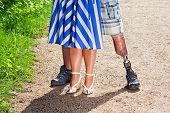 stock photo of amputation  - Close up view of the legs of a disabled man wearing a prosthetic leg following a limb amputation standing with a stylish woman in a dress on a gravel path - JPG