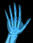 stock photo of skeletal  - View of Hand xray image medical background - JPG