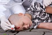 pic of scalping  - A lying boy in coma after accident with injured head doctor nearby - JPG