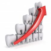 3d teeth bar graph with red arrow pic.