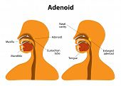 foto of pharyngitis  - Adenoid - JPG