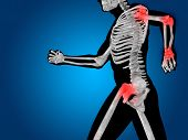 picture of osteoporosis  - Conceptual 3D human man anatomy or health design - JPG