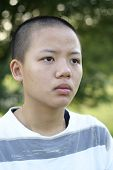 Depressed bald asian teen girl