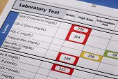 high risk cholesterol  - a detail of blood laboratory screening results with focus on lipids panel poster