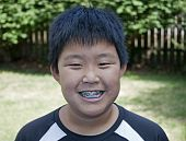 stock photo of overbite  - Young boy smiling and showing his braces - JPG