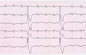 stock photo of premature  - Emergency cardiology - JPG