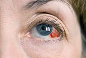stock photo of hemorrhage  - Human eye with a subconjunctival hemorrhage - JPG