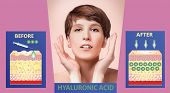 Hyaluronic Acid. Skin-care Products. The Rejuvenation With Help Of Treatment. Cosmetic Or Dermal Fil poster