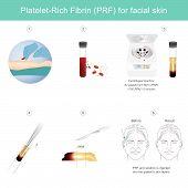 Platelet Rich Fibrin For Facial Skin. Illustration Explain Technology Treatment Medical Facial Skin  poster