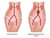 Abdominal Aneurysm Aorta Vector, Artery And Kidney poster