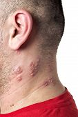 stock photo of shingle  - Raised red bumps and blisters caused by the shingles virus - JPG