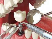 Tooth human implant. Dental implantation concept. Human teeth or dentures anddental tools. 3d illust poster