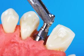 image of overbite  - tweezers holding dental implant implanted in jaw bone - JPG