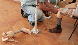 stock photo of prosthetics  - Hands machinery governing prosthetic leg on man - JPG