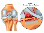 image of reconstruction  - medical Illustration of posterior cruciate ligament rupture - JPG