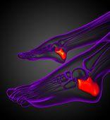 stock photo of gout  - 3d render illustration of the calcaneus bone  - JPG