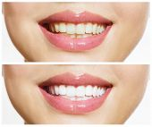 image of dentures  - Woman Teeth Before and After Whitening - JPG