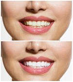 stock photo of oral  - Woman Teeth Before and After Whitening - JPG