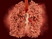 foto of tumor  - A growing malignant tumor in the lung - JPG