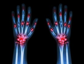 picture of gout  - multiple joint arthritis both hands  - JPG
