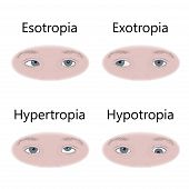 Strabismus Types In Infants, Child, Kid. Cross-eyed, Esotropia, Inward Eyes, Wall-eyed, Exotropia, O poster