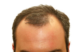 stock photo of bald headed  - male head with hair loss symptoms - JPG