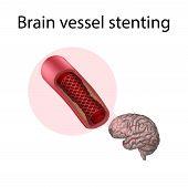 Brain Vessel Stenting. Blood Flow. Medical Anatomy Illustration. poster