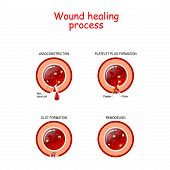 Phases Of The Wound Healing Process. Hemostasis, Inflammatory, Proliferative, Maturation And Remodel poster