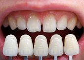 stock photo of tooth gap  - Shade determination with the help of a shade guide - JPG