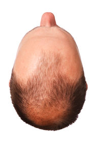 stock photo of male pattern baldness  - Top of a man - JPG