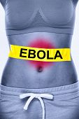 picture of vomiting  - Ebola virus infection - JPG