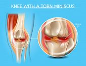 Knee With Torn Meniscus Realistic Vector Medical Scheme With Damaged Knee Joint And Magnified Painfu poster