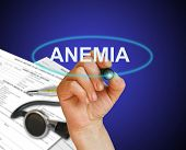 image of hemoglobin  - writing word Anemia with marker on gradient background made in 2d software - JPG