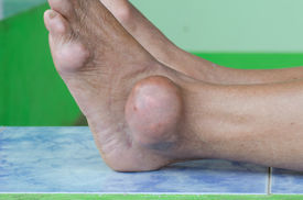 image of gout  - foot of gout patient - JPG