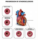 stock photo of coronary arteries  - Progression of Atherosclerosis till heart attack - JPG