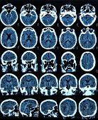 stock photo of mri  - MRI scan of the human brain - JPG