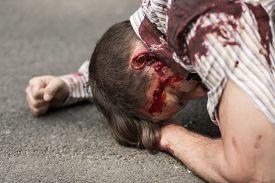 stock photo of terrorist  - Horizontal view of casualty of terrorist attack - JPG