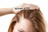 Woman before and after hair loss treatment on white background poster
