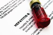 picture of hepatitis  - Close up of Hepatitis text on paper - JPG