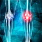stock photo of knee  - Knee joint pain abstract blue triangle background - JPG