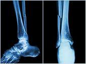 pic of fracture  - Fracture shaft of fibula bone  - JPG
