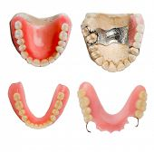 stock photo of overbite  - dental prosthetics  collection - JPG